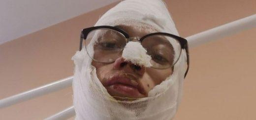 Обгоревших в машине полиции иркутских подростков обвинили в хранении наркотиков